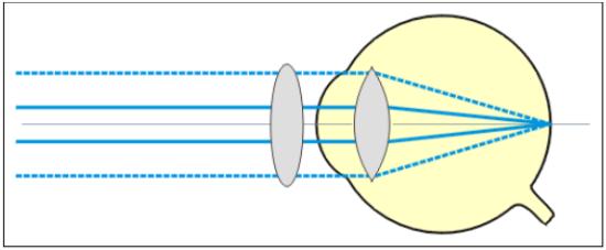 Correction de l'astigmatisme