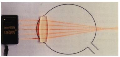 Modélisation d'un oeil hypermétrope