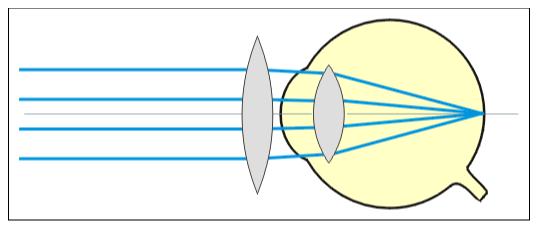 Une lentille convergente corrige l'hypermétropie