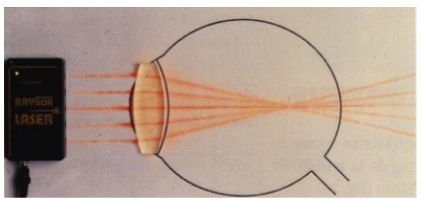 Modélisation d'un oeil myope
