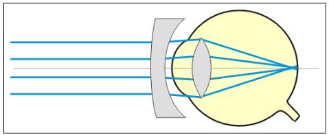 Des lentilles divergentes corrigent la myopie